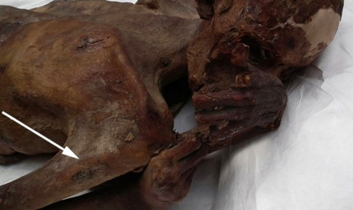 I più antichi tatuaggi della storia trovati su due mummie egizie (foto British Museum)