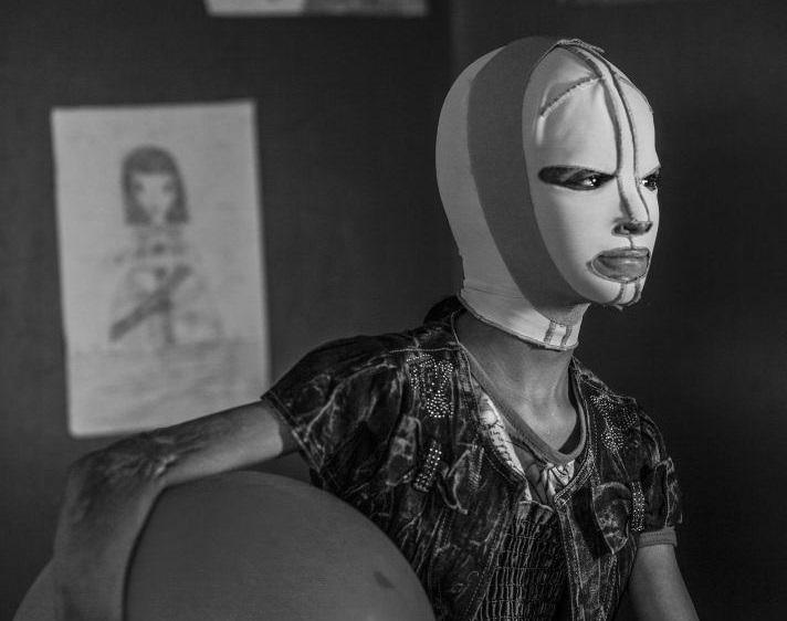 Manal - Ritratti di guerra (particolare) Alessio Mamo Fonte foto World Press Photo 2018